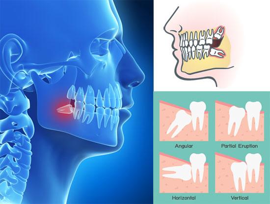 samples-of-impacted-teeth