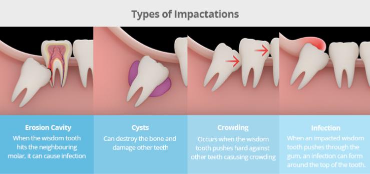 wisdom-teeth-Impactation
